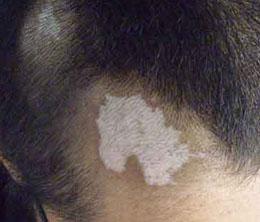 头部患白癜风怎么办,头部白癜风如何治疗?