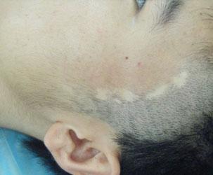 脸上白癜风有什么症状?